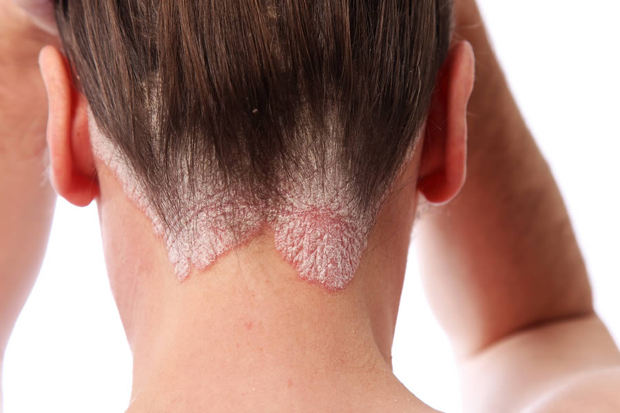 Psoriasis on the Hairline and Neck